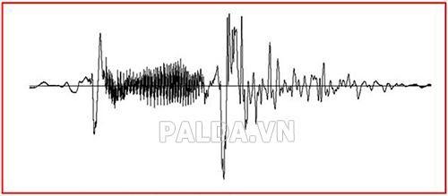 tín hiệu analog âm thanh